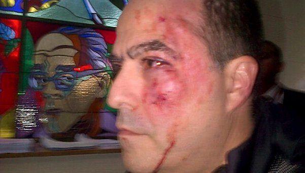 Venezuela: tensiones llevan a una pelea en la Asamblea