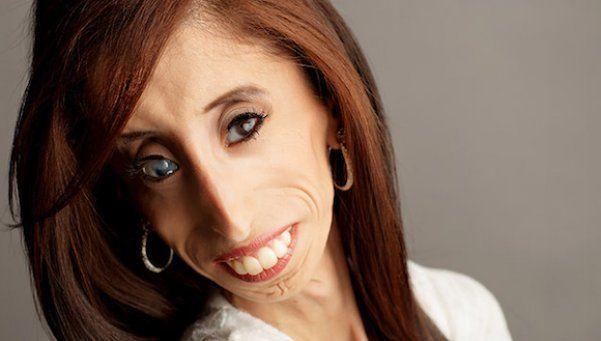 """Conocé a Lizzie Velásquez, """"la mujer más fea del mundo"""""""