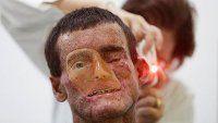 Extraña enfermedad que derrite la piel ataca a Brasil