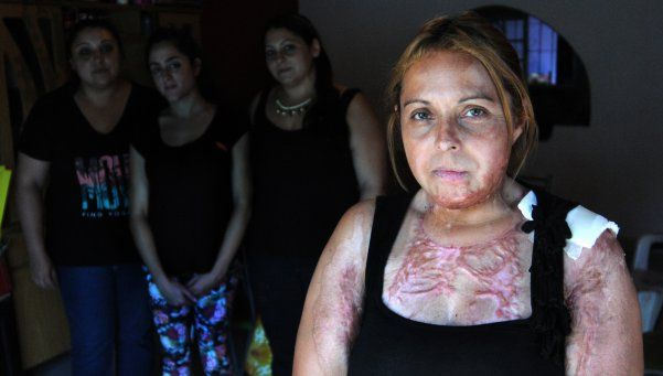 Quisieron atropellar a mujer que sufrió intento de femicidio