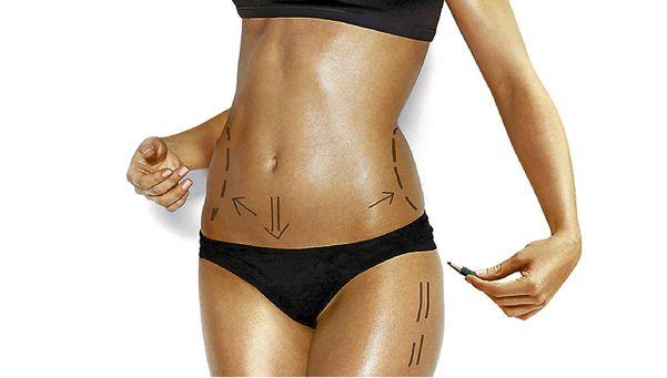 Cirugías estéticas: 10 consejos antes de tomar la decisión