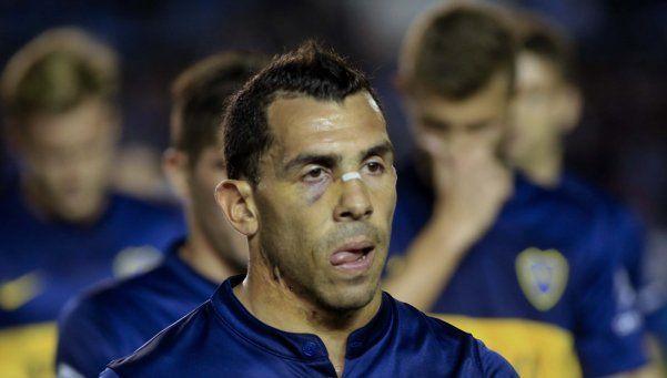 Tevez, caliente: No podemos terminar con nueve jugadores