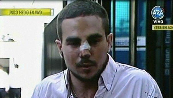 Palermo: patovicas lo molieron a golpes y le fracturaron el tabique