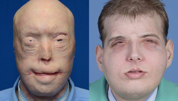 La impactante imagen del hombre al que le trasplantaron la cara