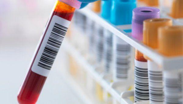 Un estudio muy simple para anticiparse a posibles enfermedades
