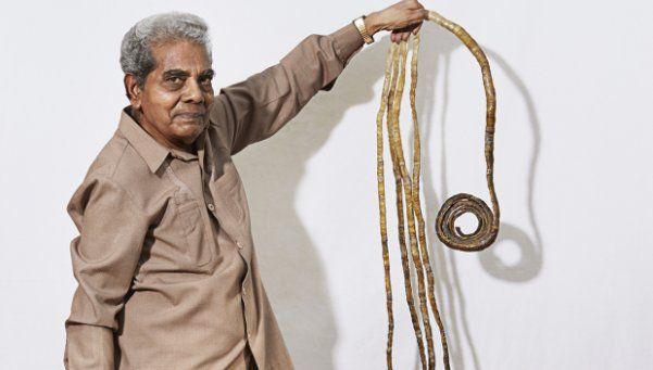 Un hombre lleva sesenta años sin cortarse las uñas
