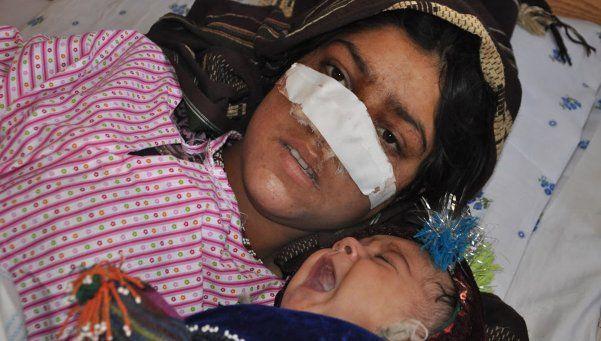 Afganistán: Le cortó la nariz a su esposa y se hizo talibán para huir