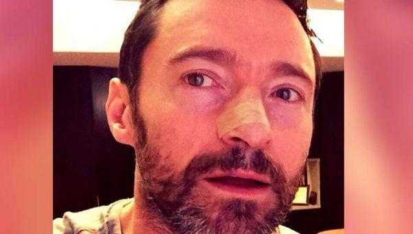 Hugh Jackman fue operado otra vez por un cáncer de piel