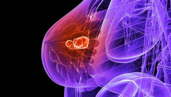 Peligroso: 4 de cada 10 mujeres no se realizan mamografías anualmente
