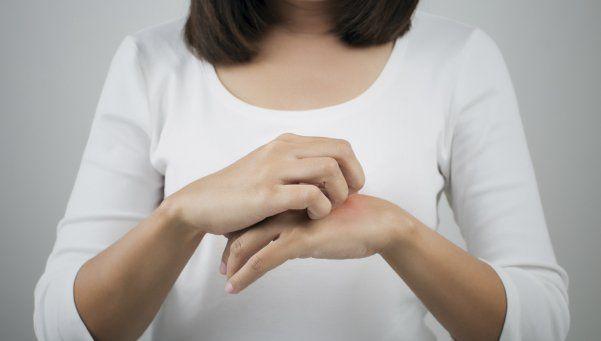 Alergias de piel: la enfermedad más extendida del mundo