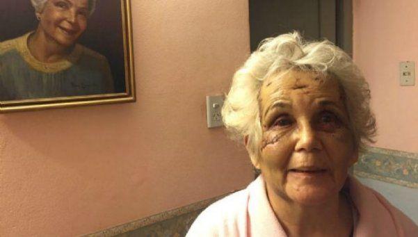 Brutal golpiza y amenaza de un hombre de 74 años a su novia de 72