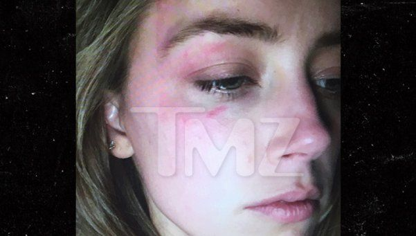 Amber Heard denunció a Johnny Depp por golpearla, y mostró sus moretones