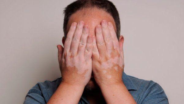 Día Mundial del Vitiligo: esas manchas que angustian