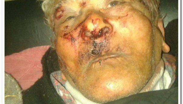 Desfiguraron a un abuelo durante robo en su casa