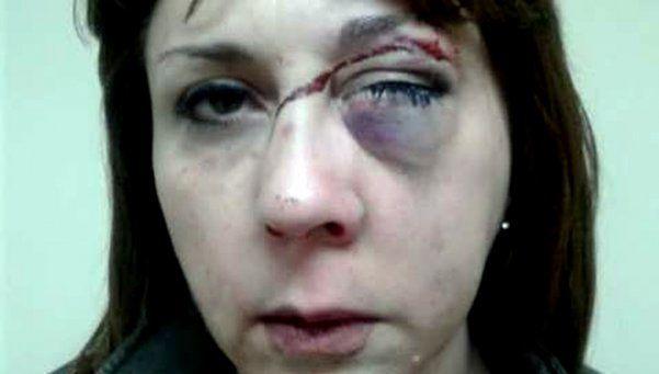 Violento asalto a la hermana del prófugo Marcelo Mallo