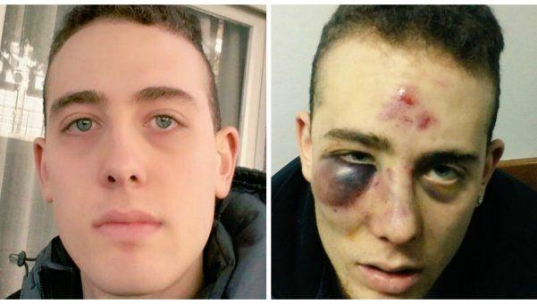 Lo golpearon a la salida de un boliche: No me mataron porque no quisieron