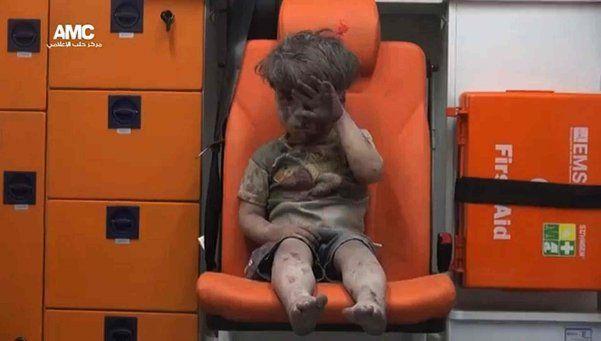 La imagen de niño herido en bombardeo en Siria que estremeció al mundo