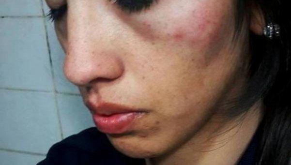 Mujer policía sufrió misteriosa agresión de tres hombres
