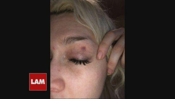 Apareció una foto de Militta Bora golpeada: ¿violencia de género?