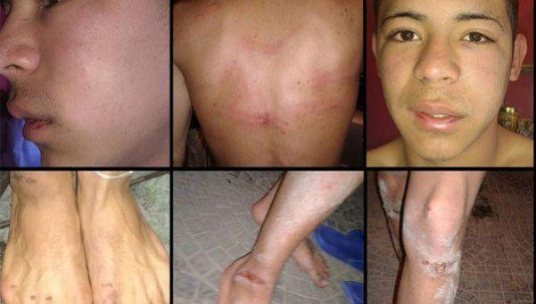 Denuncian que prefectos y policías torturaron a dos chicos
