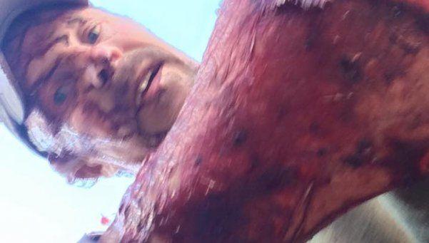 Cazador fue atacado por una osa, sobrevivió y mostró las heridas