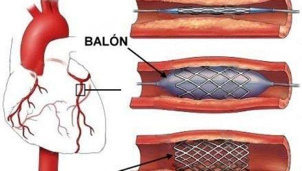Qué es la angioplastia, la intervención que le hicieron a Carrió