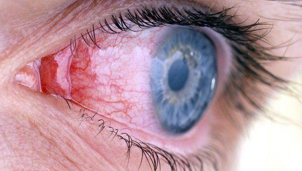 Mitos y errores en el cuidado de la vista