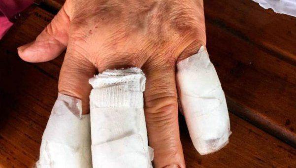 Asaltaron y le cortaron los dedos a un juez