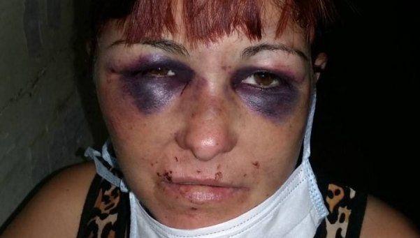 Se fue a dormir y su novio la despertó a los golpes: salvó su vida de milagro