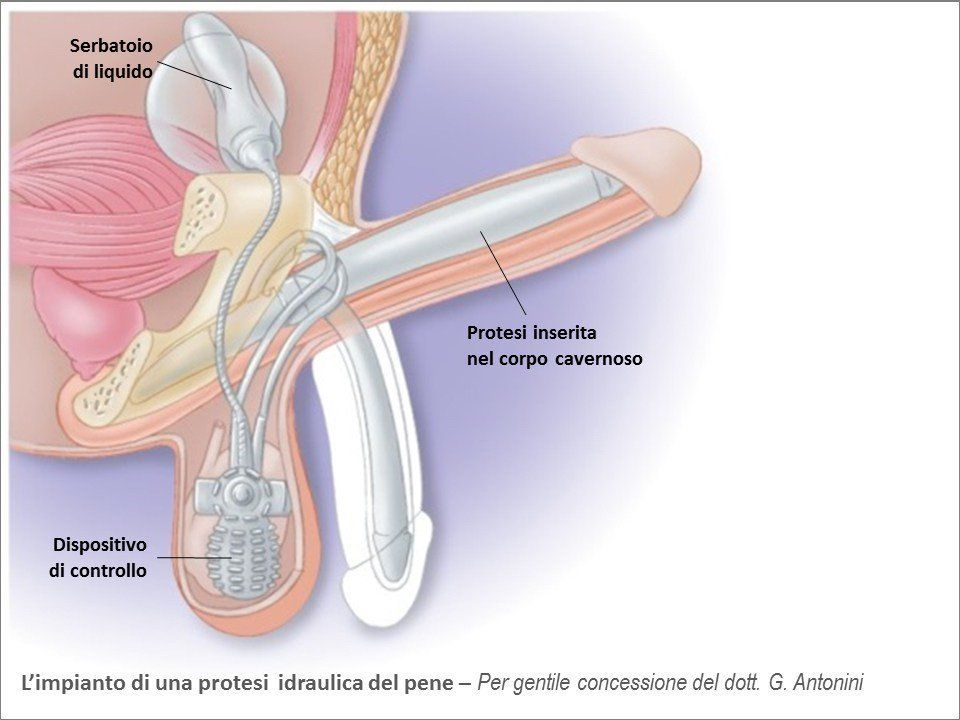 La técnica es mínimamente invasiva y en cuatro a seis semanas el paciente recupera su vida sexual.