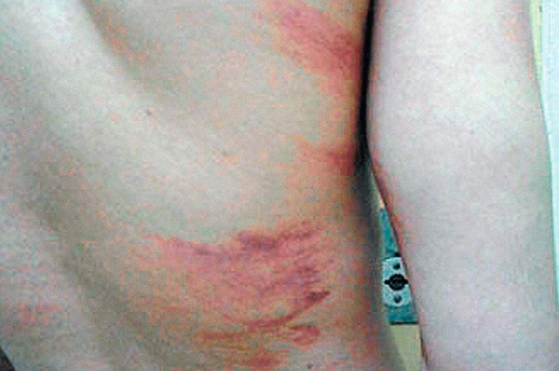 Buscan que no quede impune causa por torturas en prisión