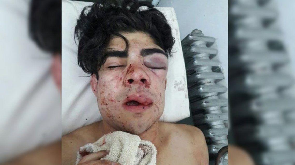 Patota golpeó brutalmente a un joven porque pensaron que era chileno