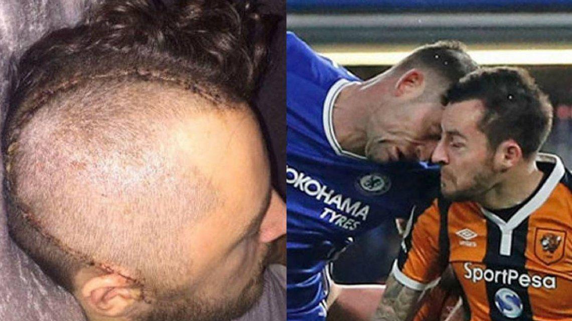 Sufrió un cabezazo en pleno partido y debió retirarse un año después