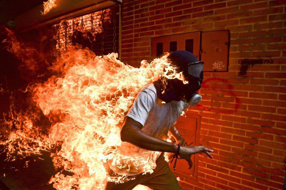 Venezuela Crisis |Un hombre envuelto en llamas corre durante una protesta en Venezuela
