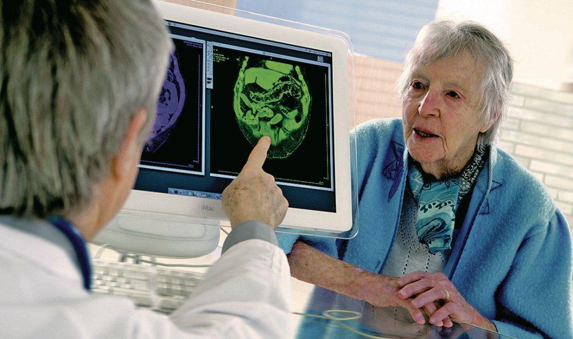 El cerebro y sus indicios prematuros sobre el Alzheimer.