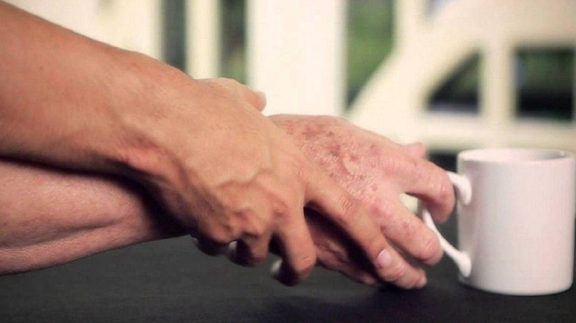 Alternativas para combatir el Parkinson