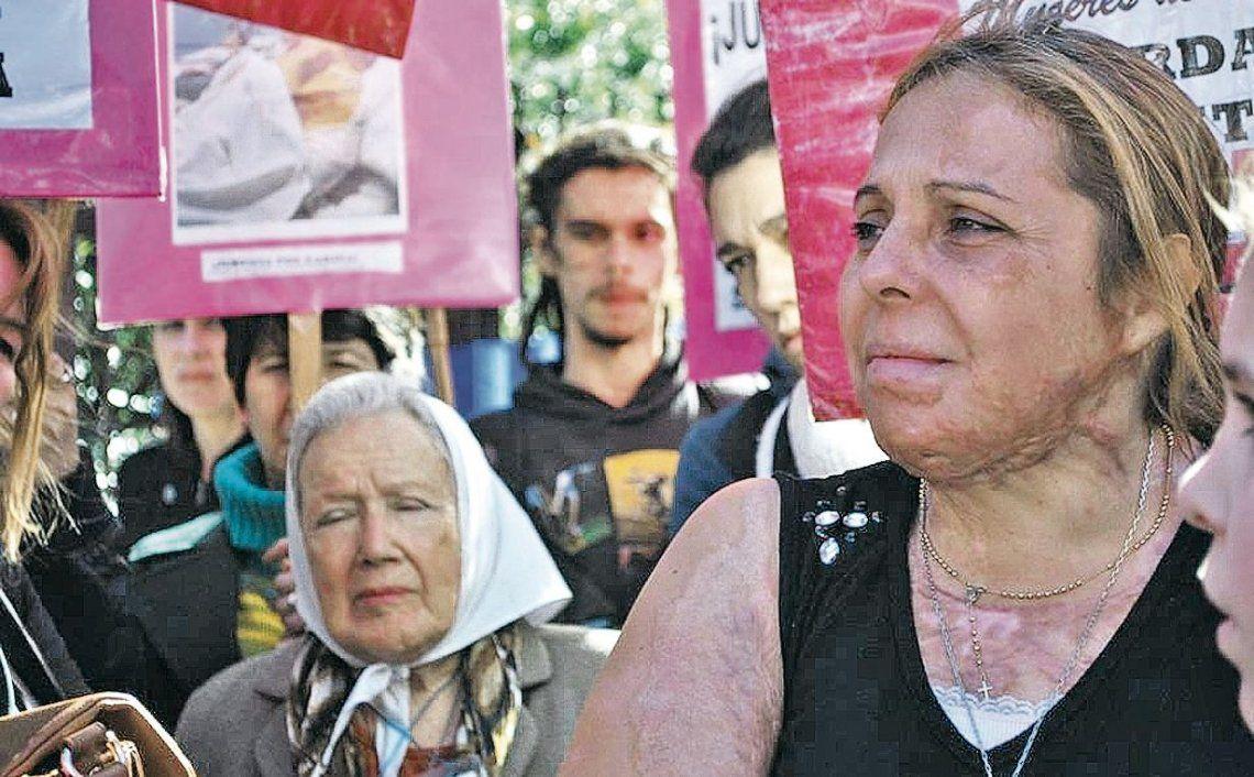 """dAbregú sostuvo que el fallo judicial """"sería una forma de frenar la violencia machista""""."""