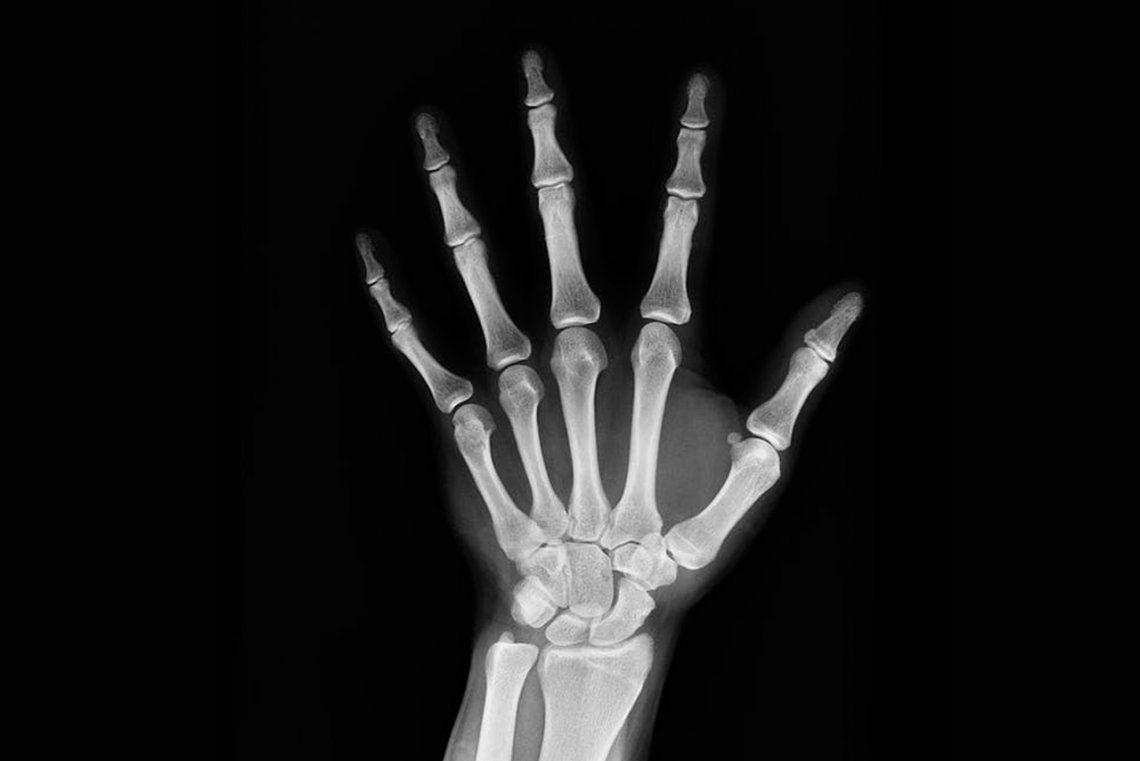Cuál es la diferencia entre la osteoporosis y la osteopenia