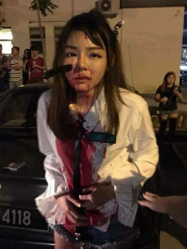 Impactante: joven acabó con un cuchillo en la cara tras resistirse a un asalto