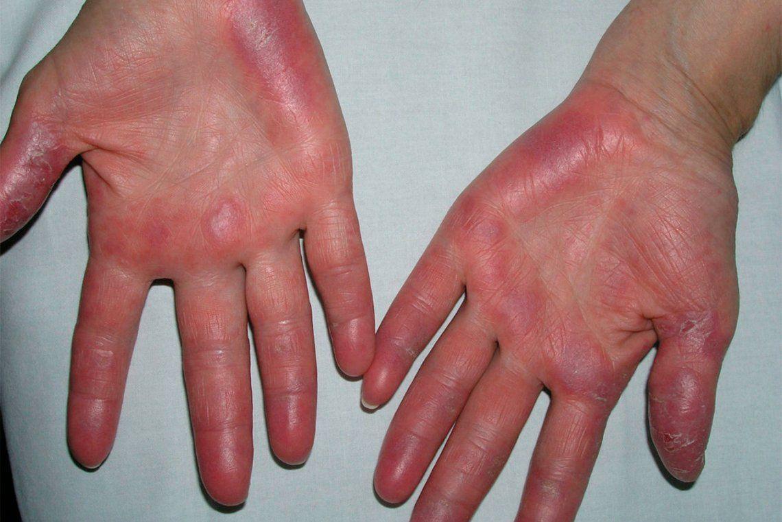 Cómo evitar las lesiones que produce el frío en la piel