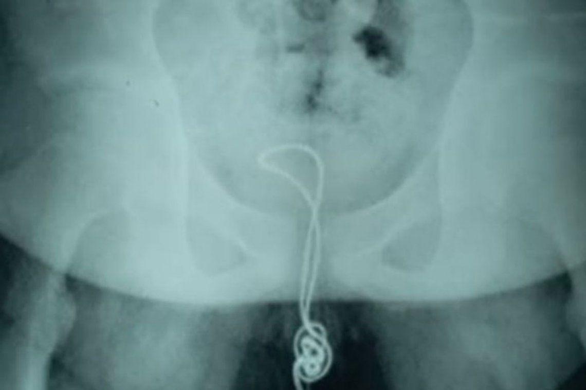 Adolescente curioso se introdujo un cable USB que acabó enredado en su vejiga