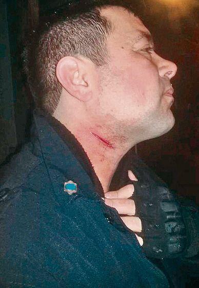 dEl policía atacado.