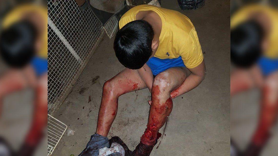 Mar del Plata: quiso robar en una casa, un perro lo atacó y terminó con una pierna destrozada