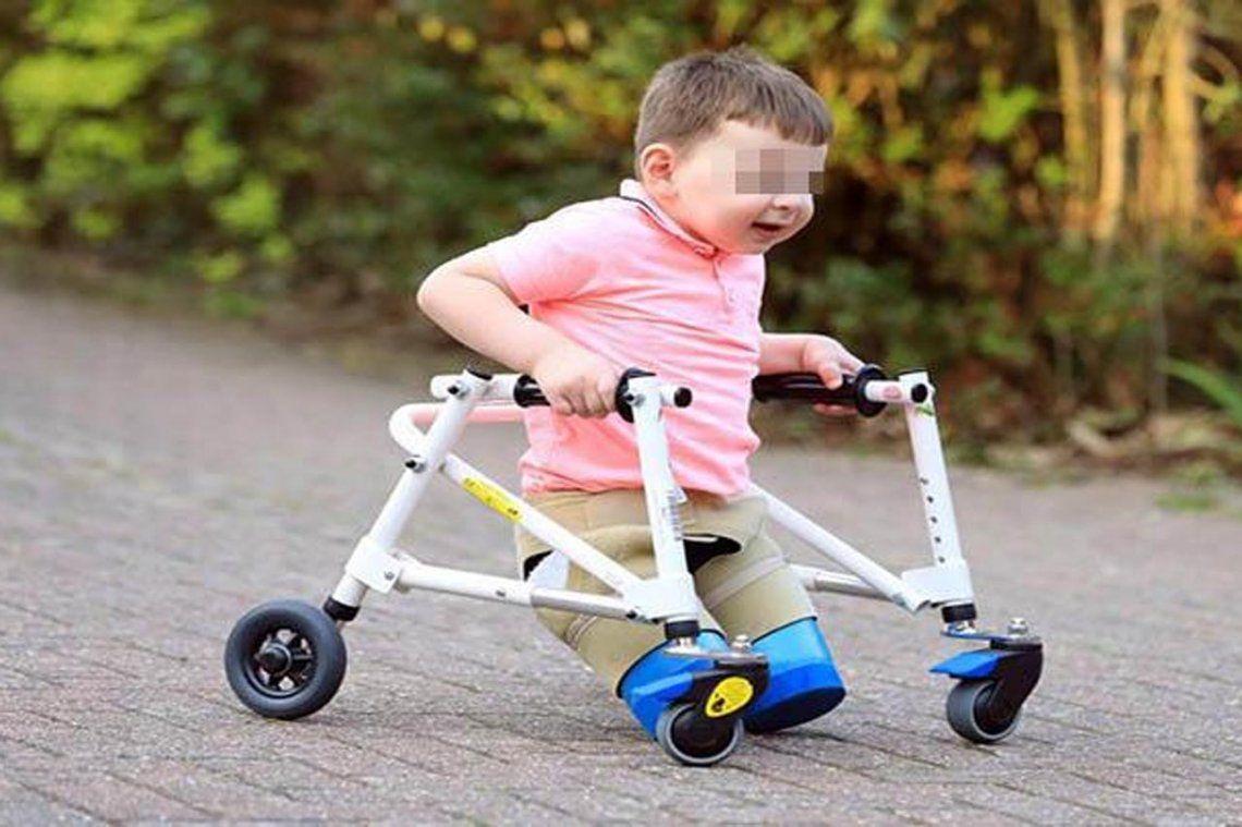 La historia del bebe al que le debieron amputar sus piernas por las golpizas que recibió de su padre