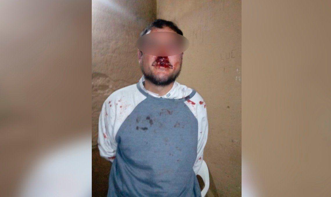 Vecinos de Varela persiguieron, atraparon y desfiguraron a un ladrón