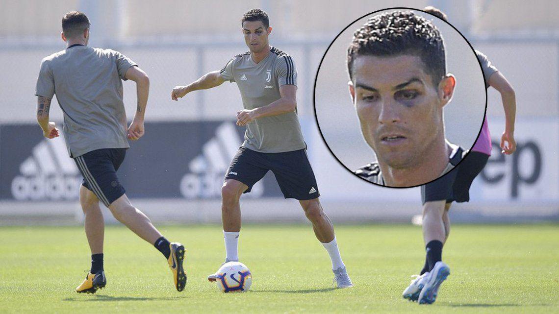 Enterate quién fue el responsable de dejarle el ojo en compota a Ronaldo