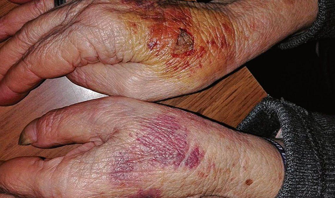 Salvaje robo con trompadas y patadas a una anciana de 83 años