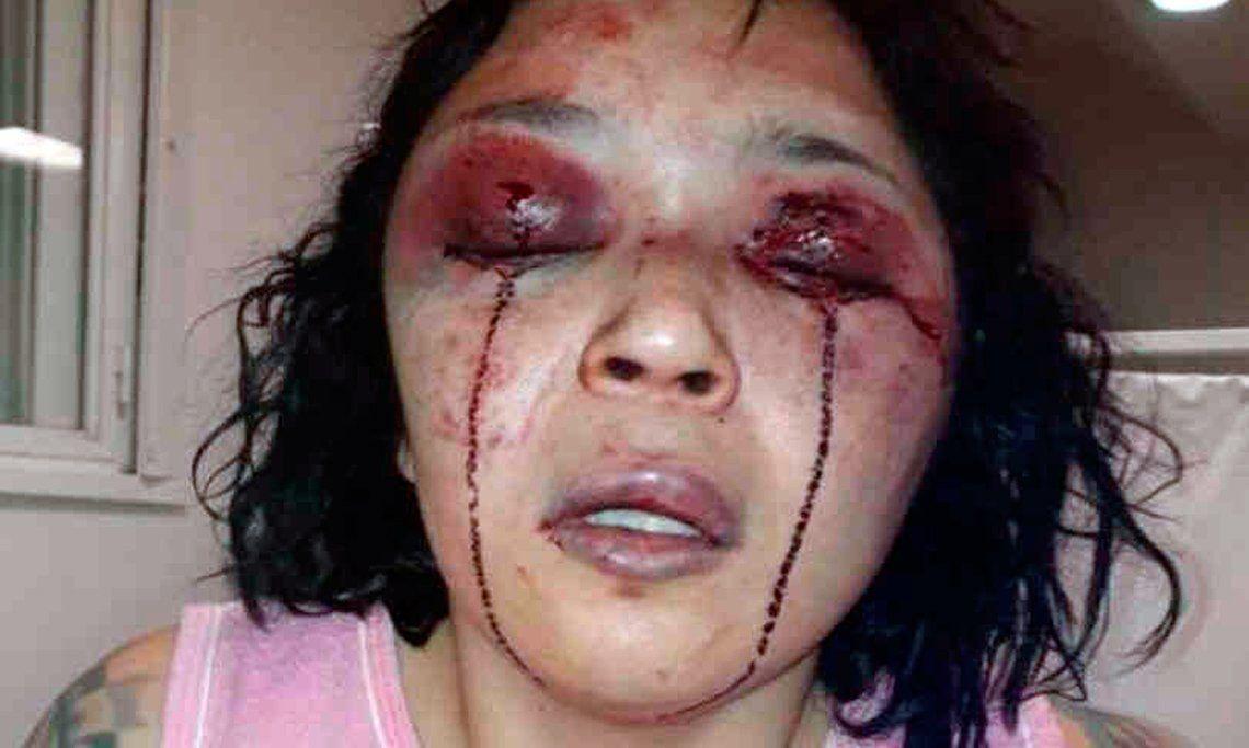 La torturó más de una hora y lo acusaron de lesiones leves