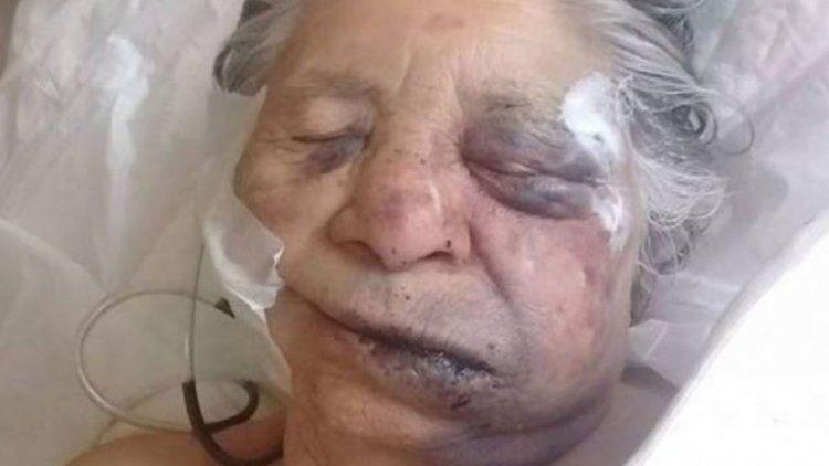 Una abuela de 84 años fue brutalmente golpeada y asaltada en Santa Fe