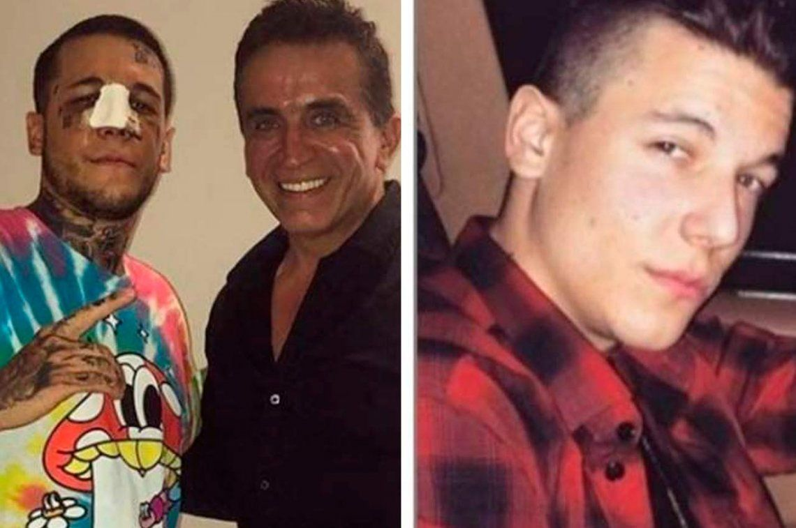 Con su nueva nariz, ahora Alexander Caniggia dice que se parece a Brad Pitt
